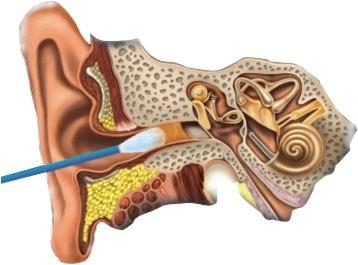Инфекцию уха нельзя удалить ватной палочкой