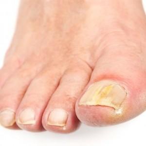 Лечение грибка ногтя суперклеем