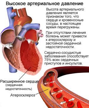 Высокое давление - первый симптом артериальной гипертензии
