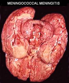 Мозг больного менингитом
