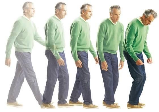 стадии болезни паркинсона