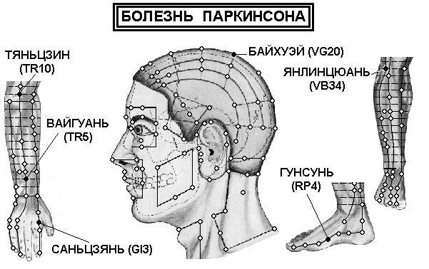 лечение болезни паркинсона с помощью аккупунктуры