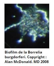 Биопленка Боррелии