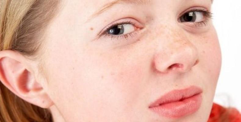 Как избавиться от прыщей на лице подростку